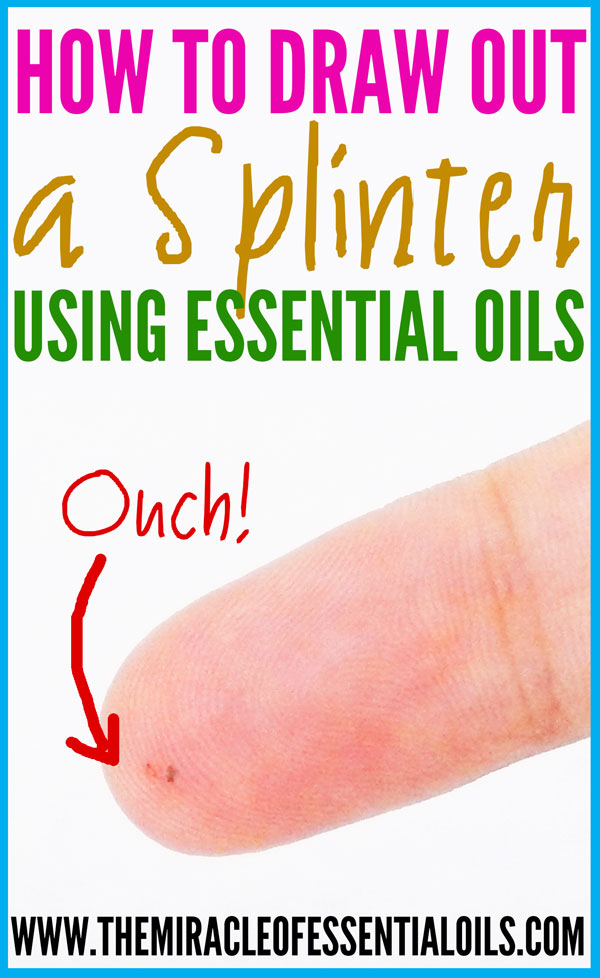Learn how to draw out a splinter with essential oils!