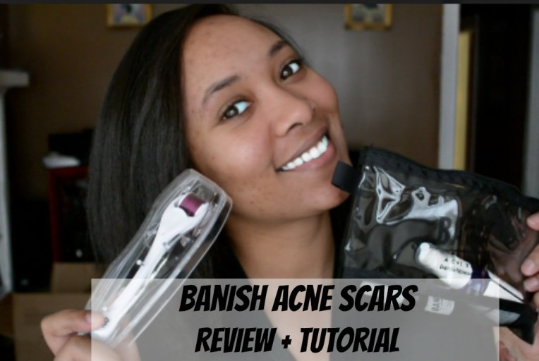Banish Acne Scars TheMonaLita