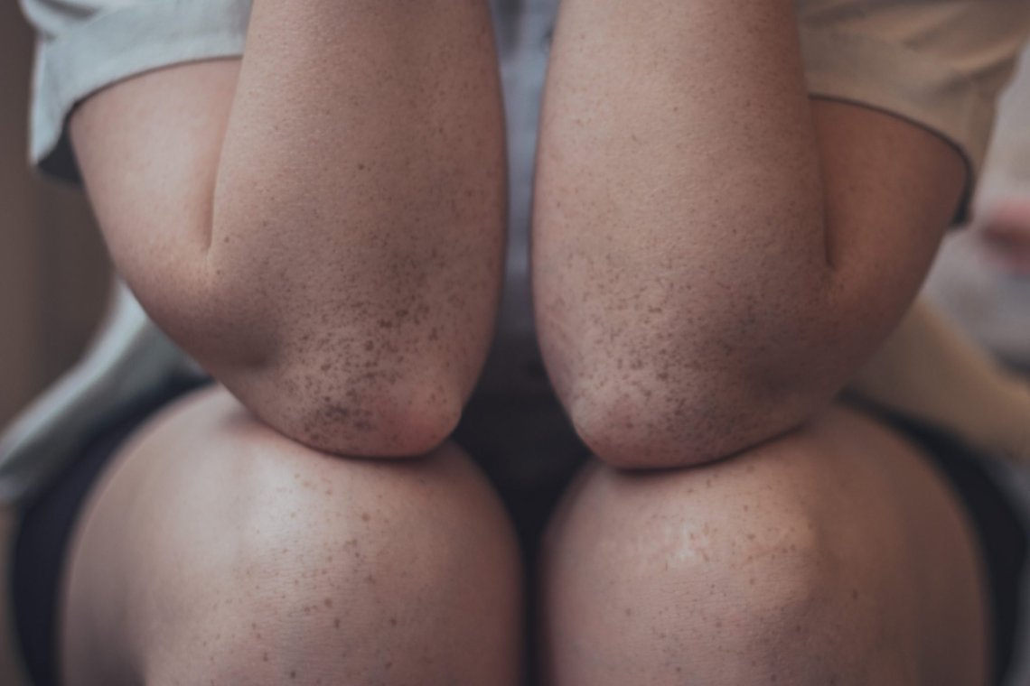 picture of freckly elbows resting on freckly knees to stop knee popping and cracking