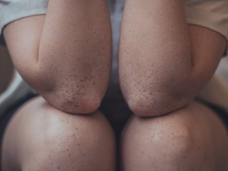 picture of freckly elbows resting on freckly knees