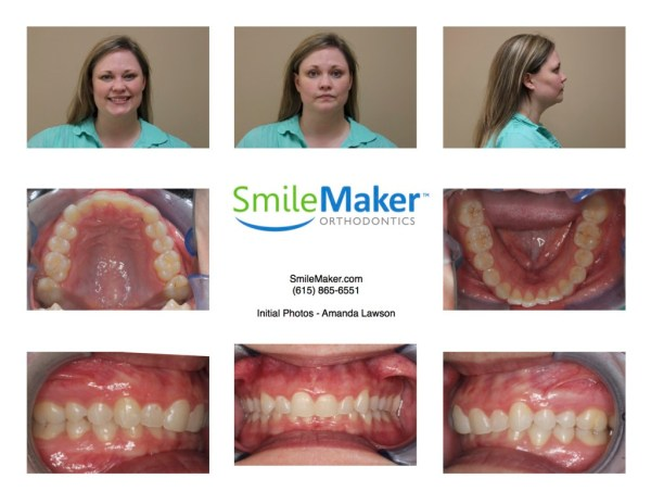 Smile maker Orthodontics, Nashville, TN