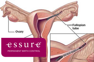 essure_birth_control_system_injuries