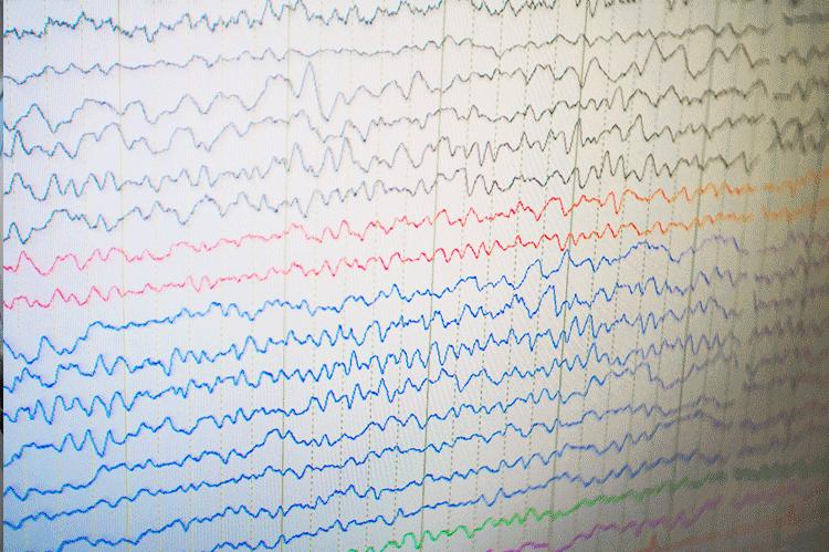 NeuroMedical-Center-Neurodiagnostic-Lab
