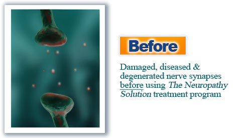 The Neuropathy Solution Program  Image of before synapses