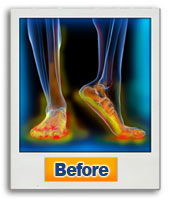 The Neuropathy Solution Program  Image of feet before using NSP