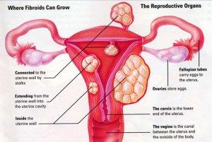 uterine-fibroids