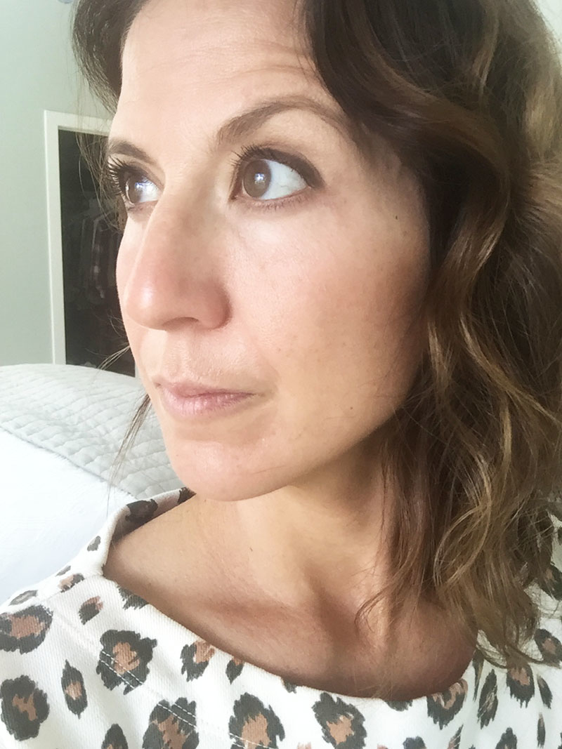 My Experience with a Medium-Depth Chemical Peel