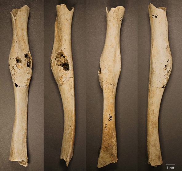What bone's connected to the STRI bone?