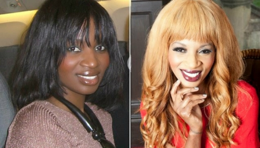 The dangerous effects of skin lightening creams | Celebrating ...