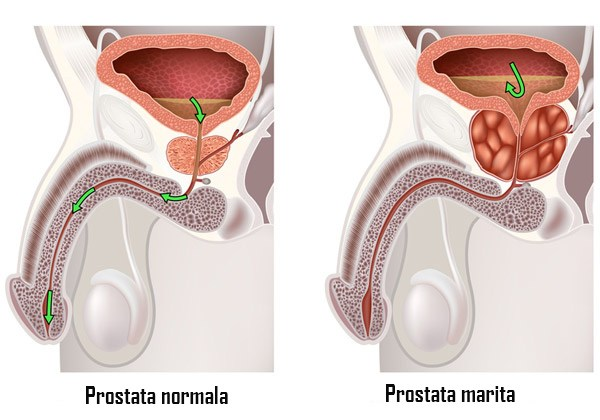 prostata tratament naturist