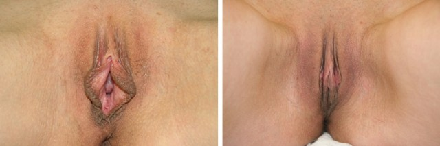 labioplastie-inainte-si-dupa-operatie-imagine