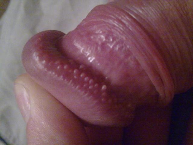 cosuri-pe-penis