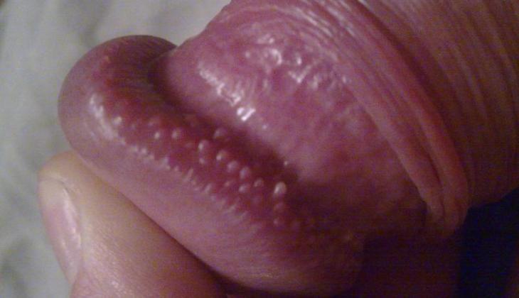 Forum despre nodul pe penis | Forumul Medical ROmedic