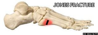 x-ray after ankle sprain jones fracture