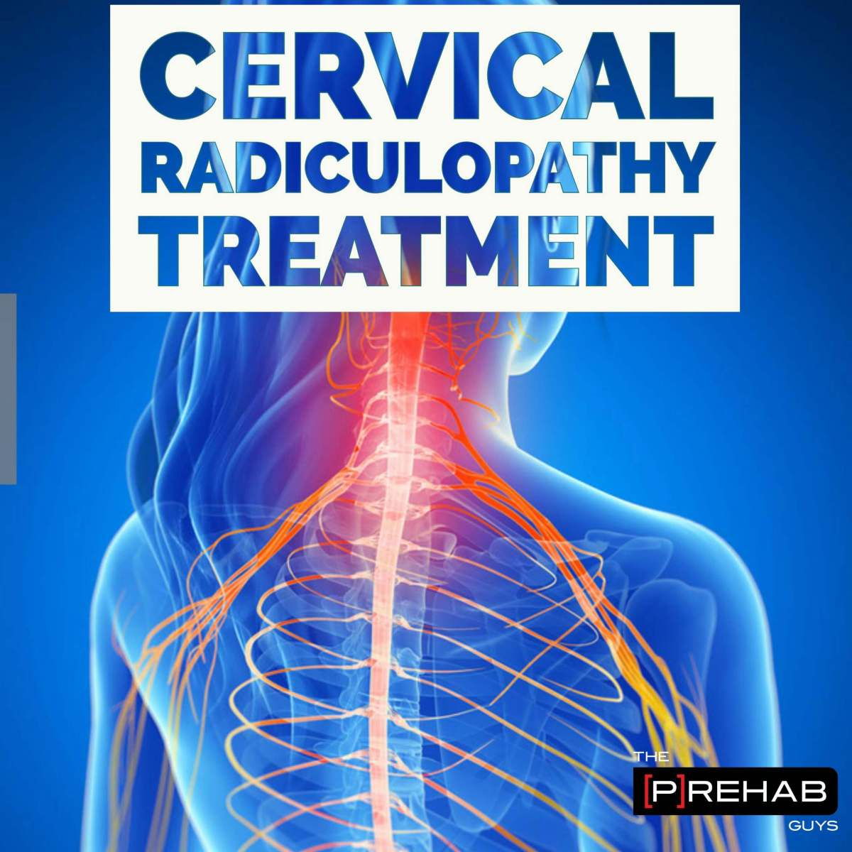 Cervical Radiculopathy Treatment And Assessment