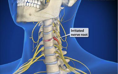 how to get rid of a trapped nerve in neck