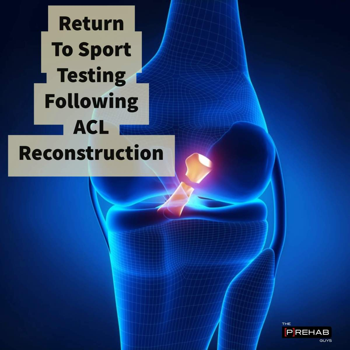 """How Do I Know When I Am Ready To Play Again?"" Return To Sport Testing For Athletes Following ACL Reconstruction Surgery"