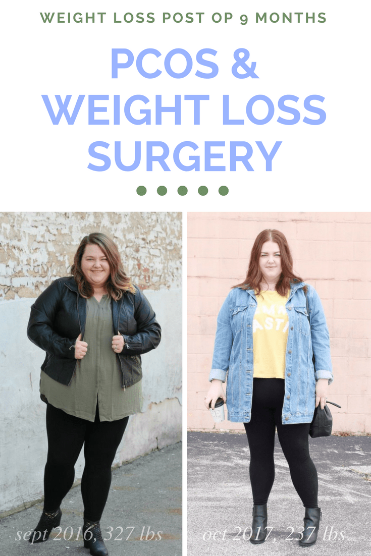 The Pretty Plus - PCOS & WEIGHT LOSS SURGERY - The Pretty Plus
