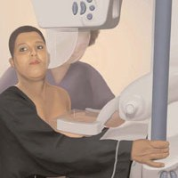 I survived my first mammogram