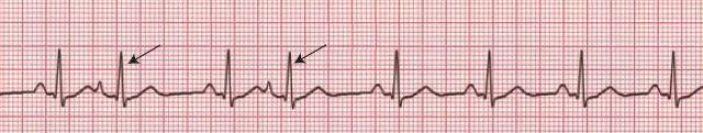 Premature Atrial Contraction (ECG)