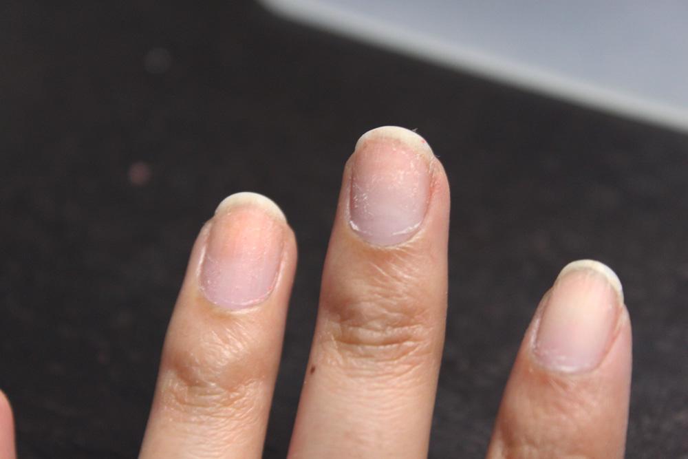 Removed nail polish, zoomed