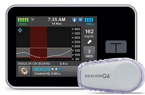 Savvy Updates, 12/16/19:  FDA Approves Tandem Control-IQ, On Dexcom's Outage, Pacific Diabetes Tech CGM/Infusion Set, Sanofi Exits Diabetes Biz, CGMs 2020, T1 Females at Higher Heart Risk, Abbott Libre Limits Data Access, Gifts for Medical Professionals?