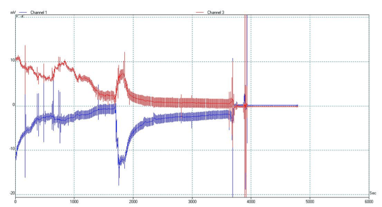 Figure 6. Bioelectronics of hypnosis and biofeedback: Second electrodynamic recording of a professional woman who had suffered a hemorrhagic stroke 20 years previously. The downward slope characteristic of hypnotic induction illustrated here is strikingly different from the biofeedback recording of the same subject in Figure 5.