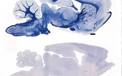 Natural experiment, dogged investigation, yield clue to devastating neurological disease