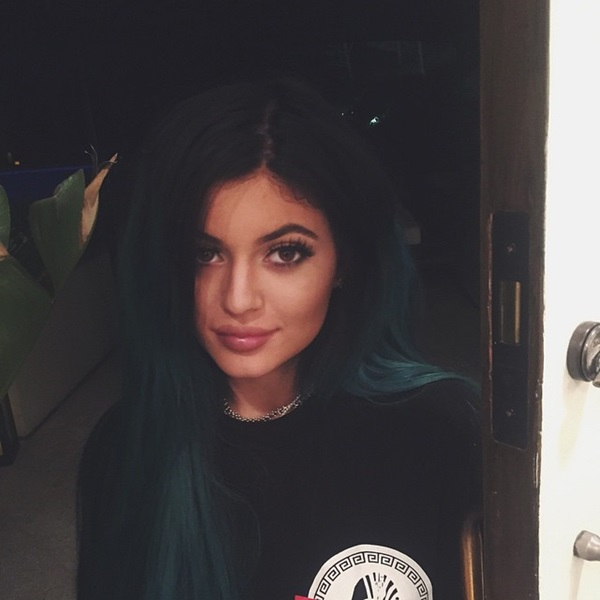 kylie jenner surgery