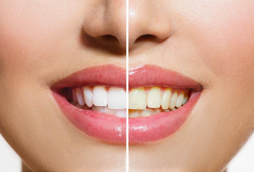 DIY teeth whitening cures