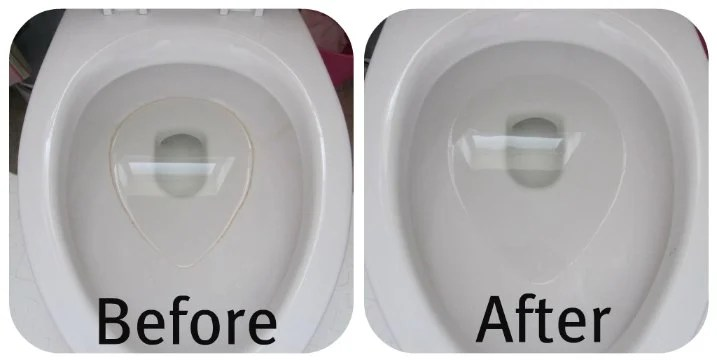 How To Finally Get Rid Of The Toilet Bowl Ring The