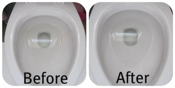 What Causes Black Ring In Toilet