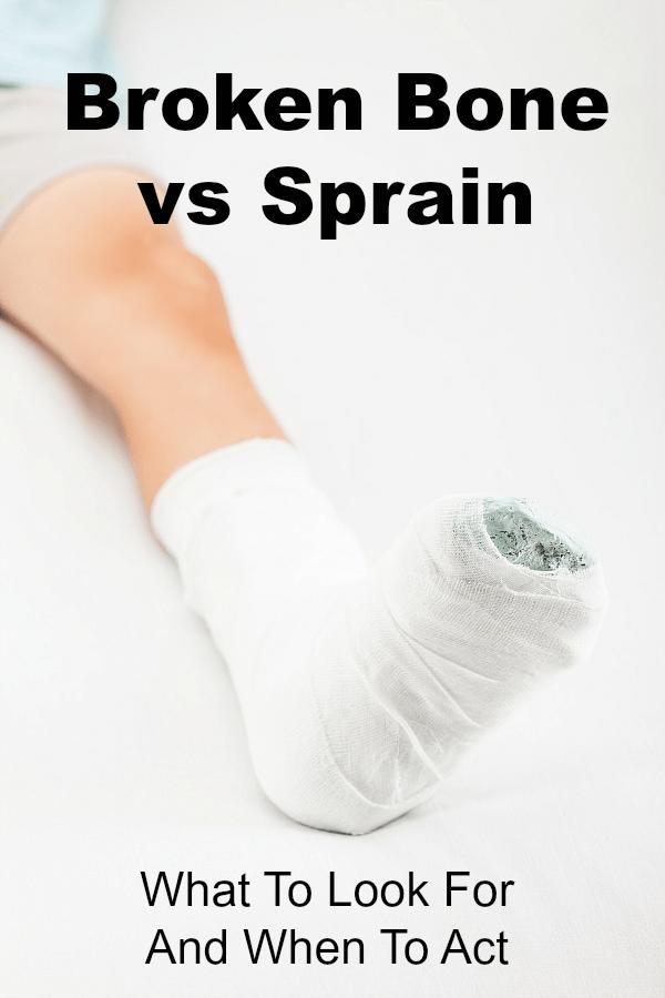 Broken Bone vs Sprain
