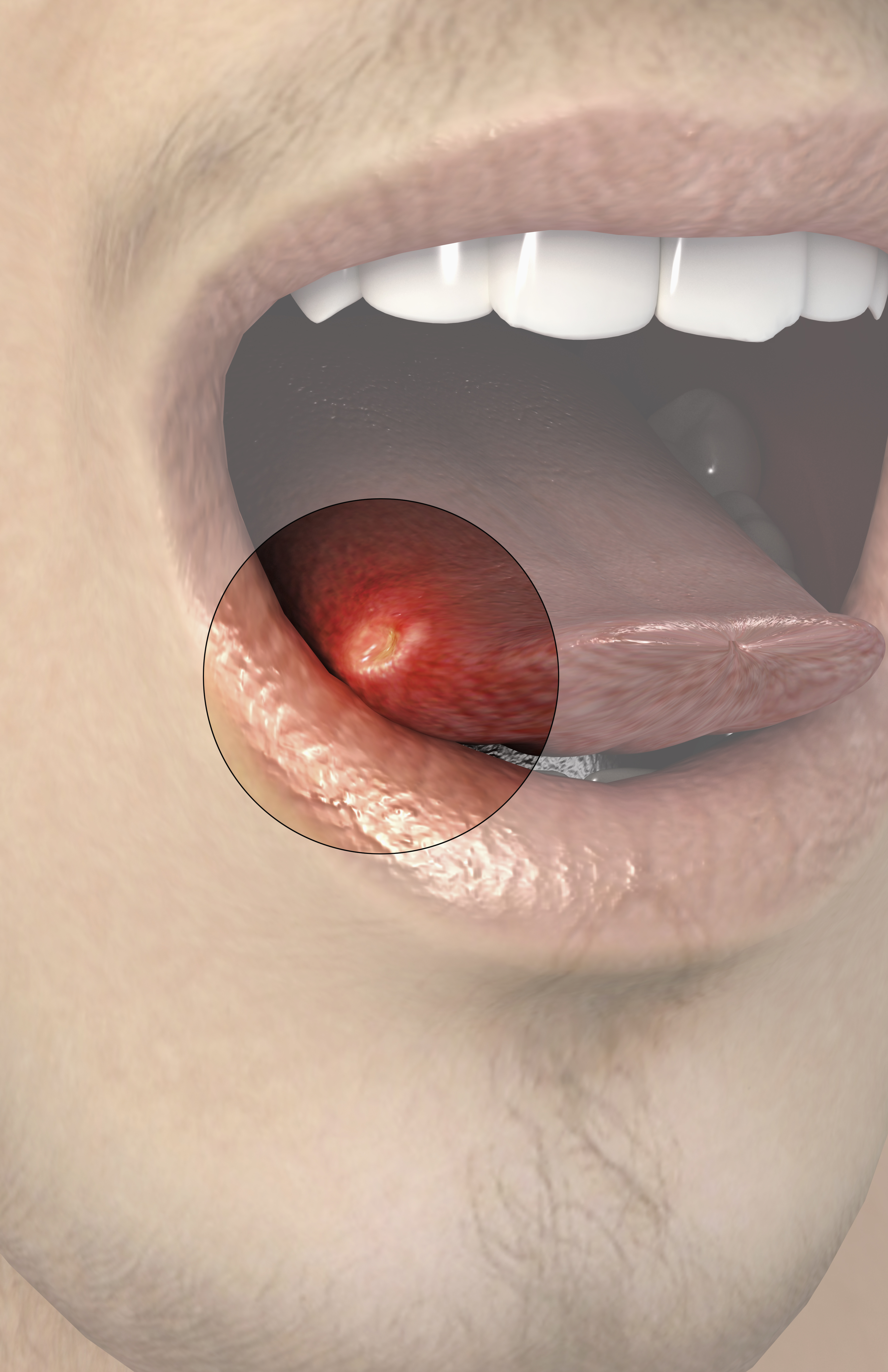 Bottom of tongue sore after kissing being sexual orientation