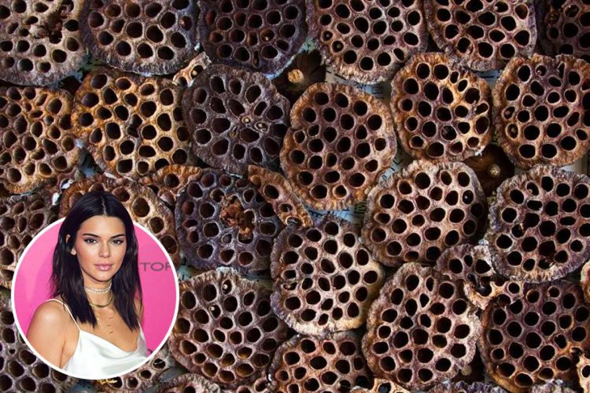 What Is Trypophobia And What Causes A Fear Of Holes Symptoms Treatment And Celebrity Sufferers