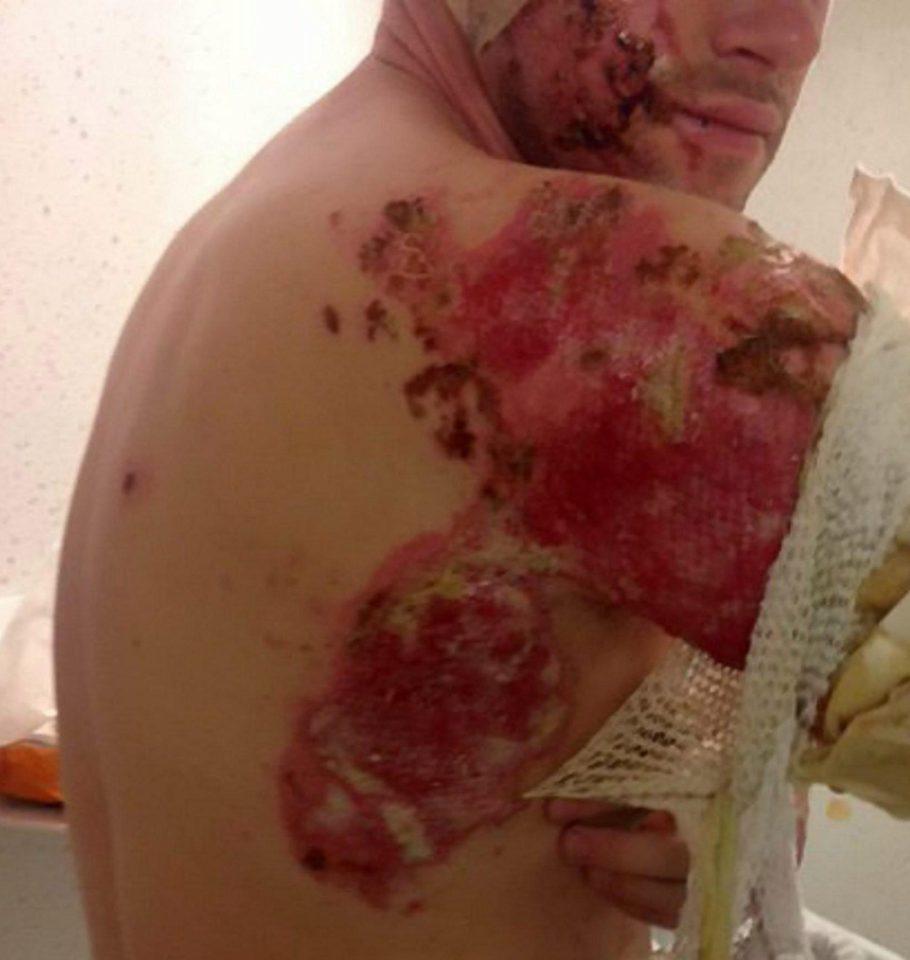 Severe… Skin is easily burned by acid