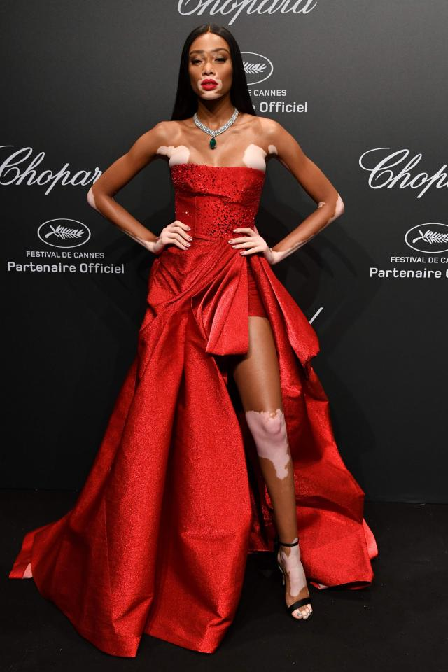Winnie Harlow looked incredible in her red ballgown