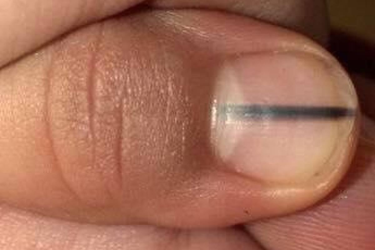 Woman posts Facebook warning over black line on fingernails after ...