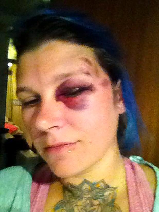 Amanda Partridge alega que la golpearon y la robaron después de que su bebida fue picado