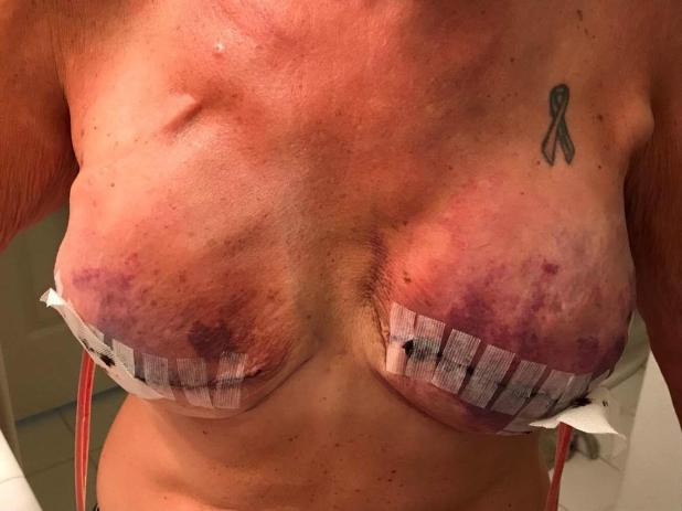 The infection was caused because her body had not had enough time to heal after the mastectomy before the implants were put in