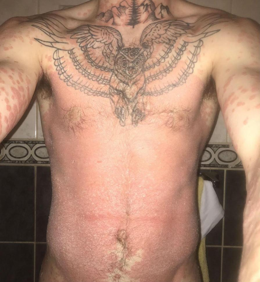 His psoriasis was so bad it covered his entire torso