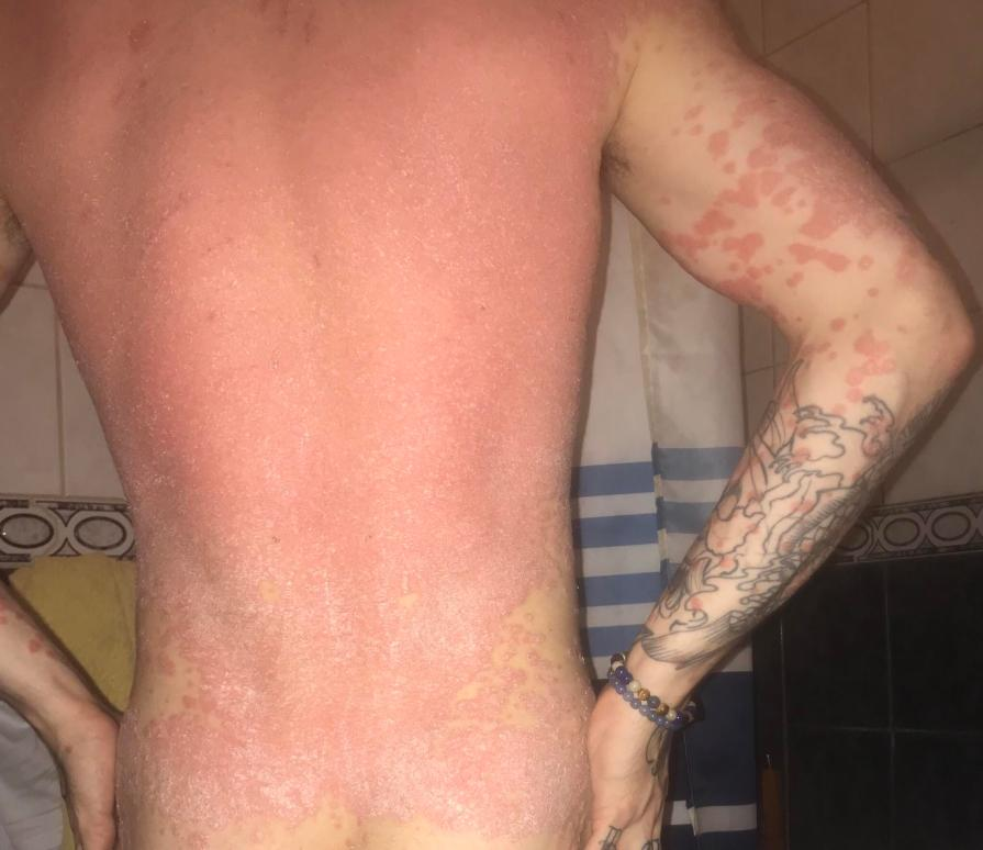 The flaky skin condition also covered his back