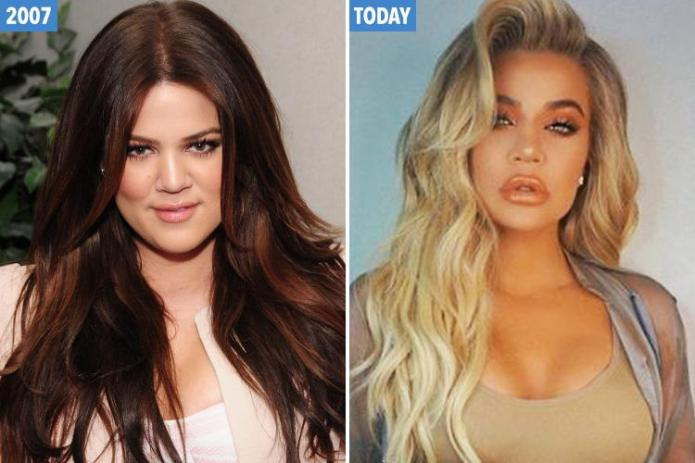 The ever-changing face of Khloe Kardashian… From awkward reality TV star to  blonde bombshell