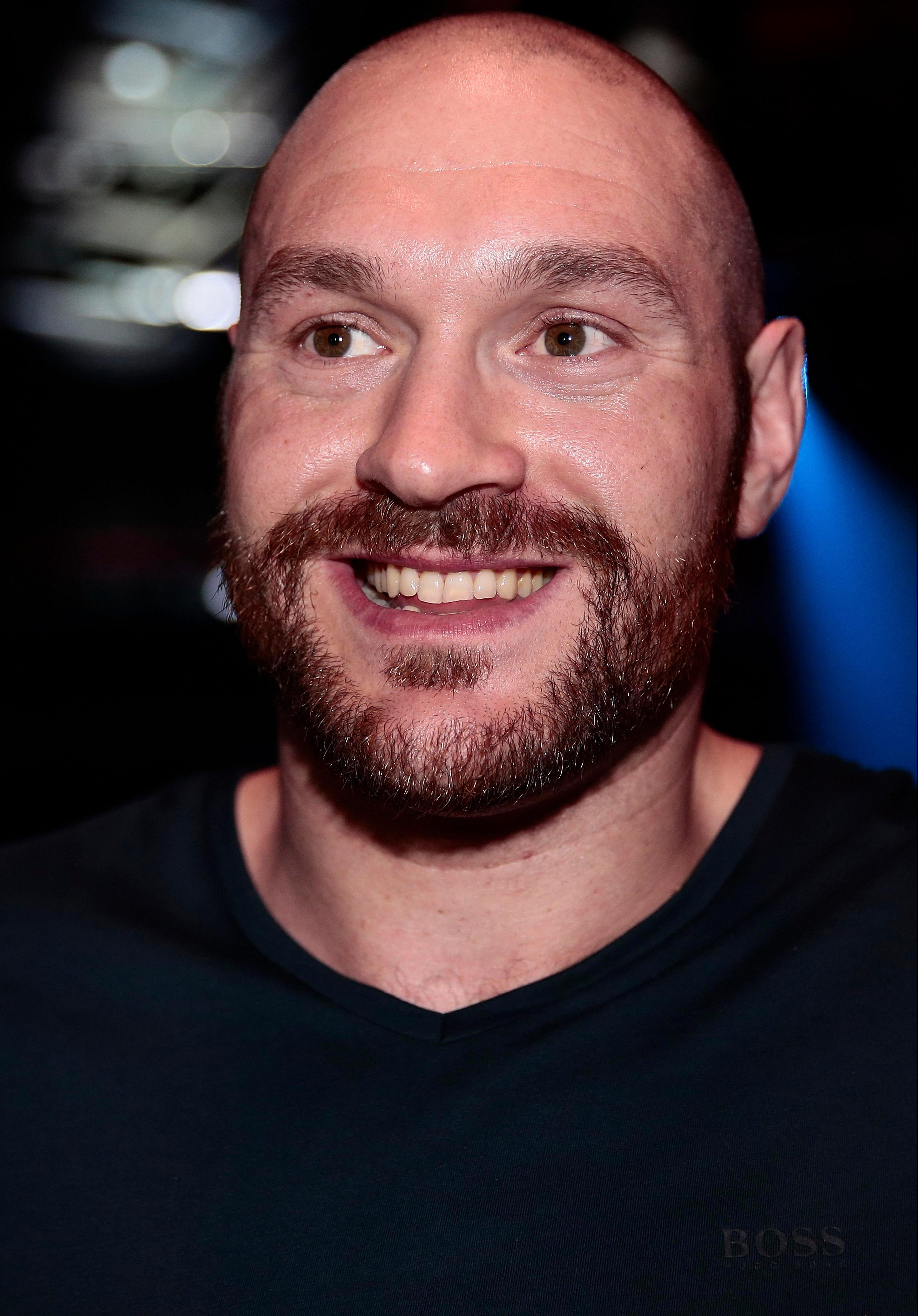 Tyson Fury should be able to get a world title shot, Colin Hart believes