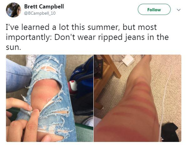 Love Ripped Jeans These Painful Sunburn Photos Show Why You