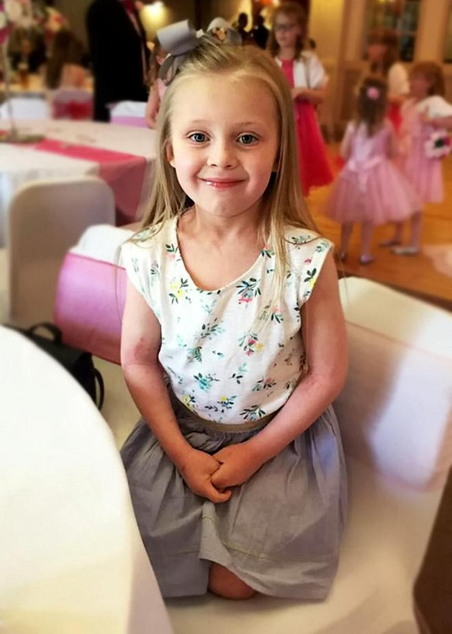Brave Brogan is set to have her second leg amputated after becoming ill with meningitis