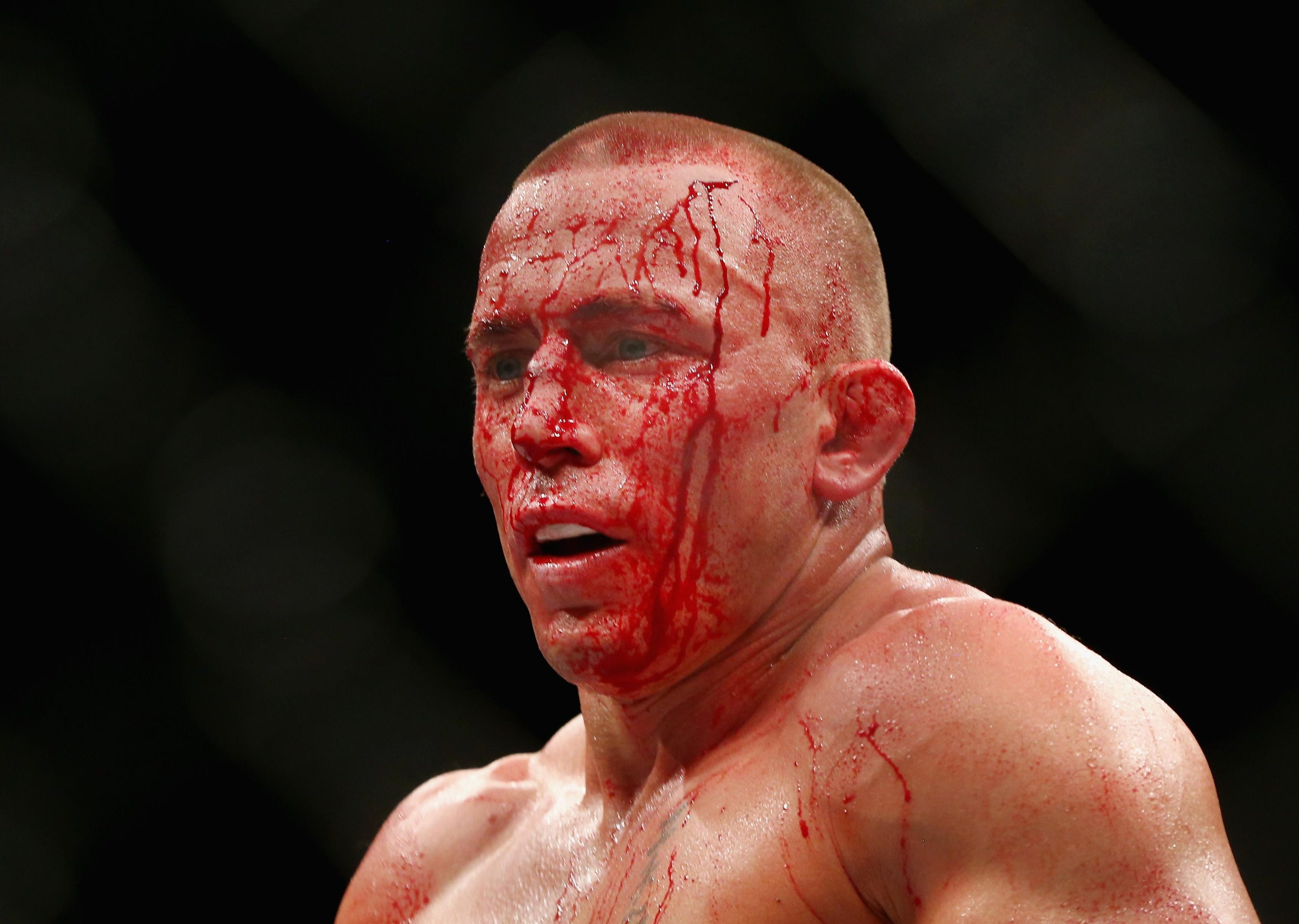 St-Pierre's UFC career appears to be over as the Canadian nurses a debilitating illness