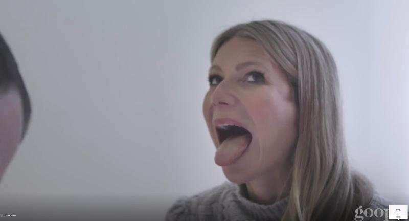 The 45-year-old poked out her tongue during the treatment