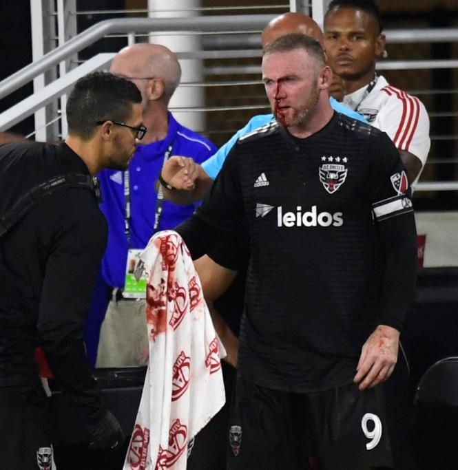 Wayne Rooney required five stitches and suffered a broken nose after the clash