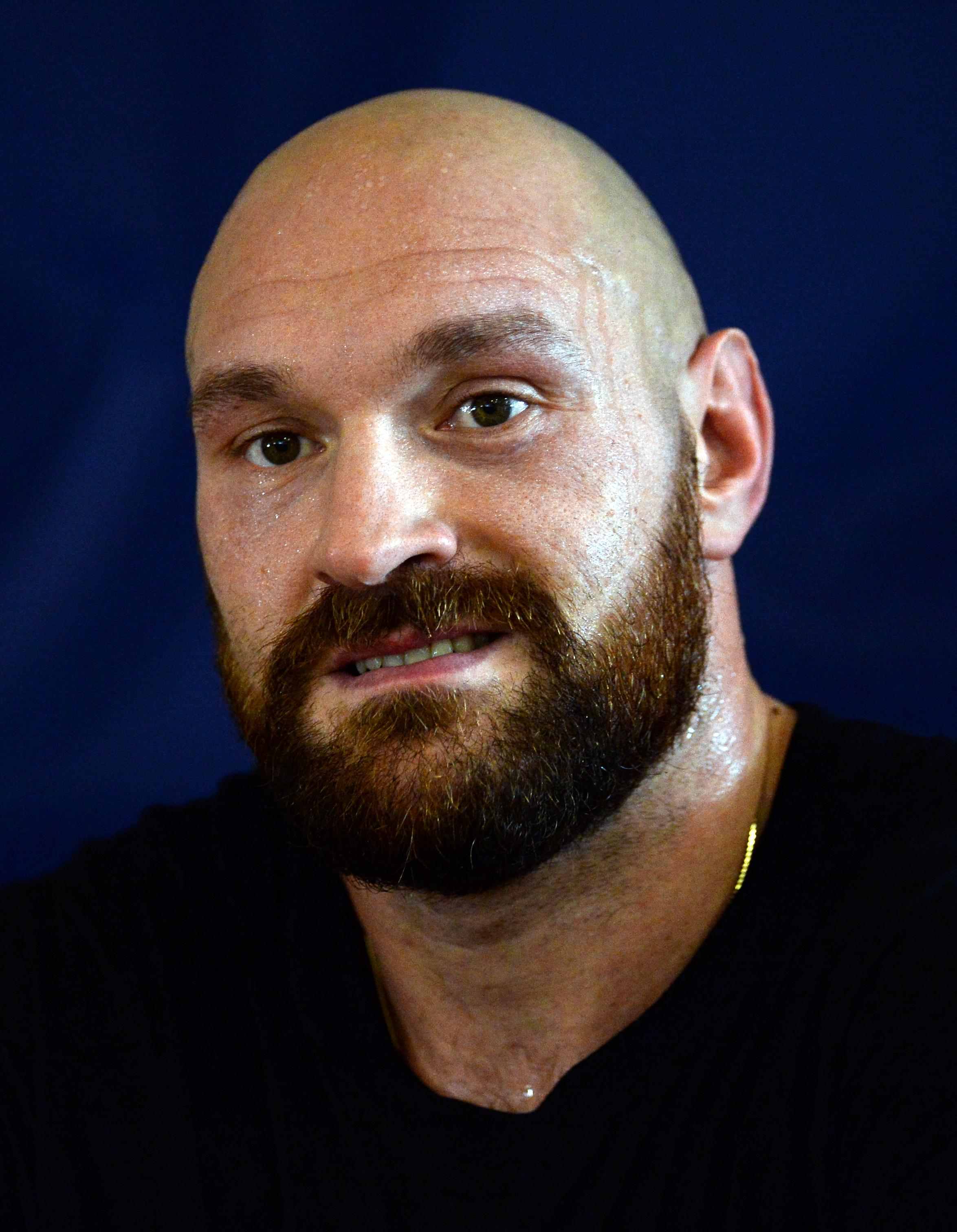Tyson Fury has accepted the challenge to fight the WBC heavyweight champ